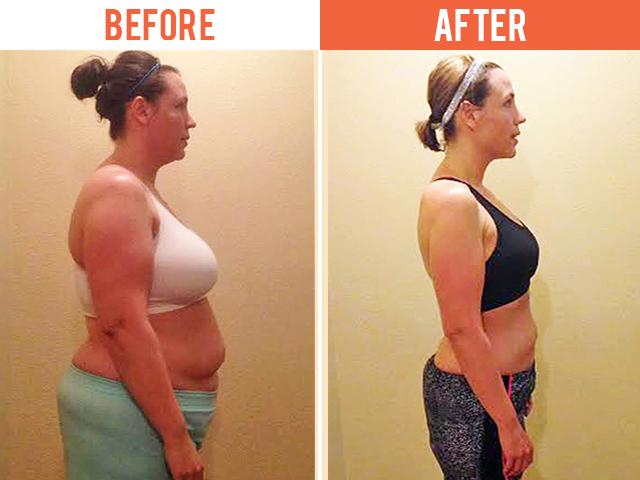 Regenerative Care Plymouth MN Weight Loss Megan