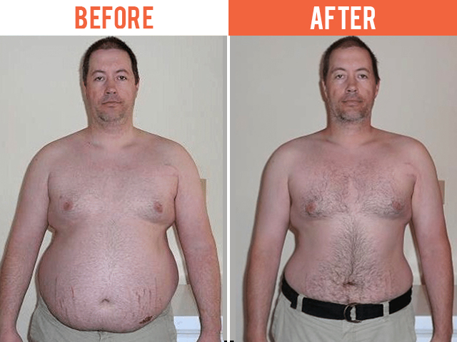 Regenerative Care Plymouth MN Weight Loss Mike